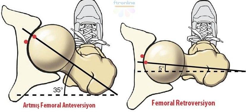 femoral-ante-retro-vers